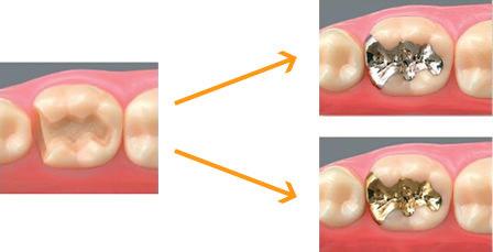 歯科用合金