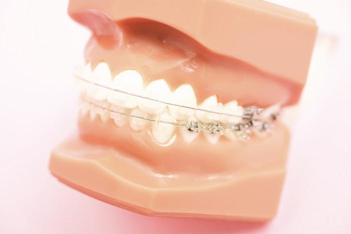 あおぞら歯科クリニックの矯正治療